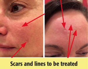 Scars and lines to be treated are visible
